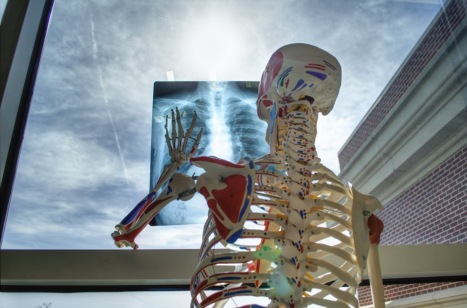 Skeleton Tools Medicine Technology X-ray Medical